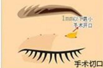 上海哪家整形医院做双眼皮修复好