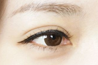 双眼皮突然变单怎么恢复
