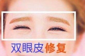双眼皮修复多少钱