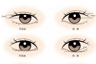 割双眼皮的注意事项