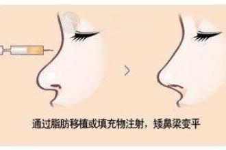 上海玻尿酸隆鼻的费用