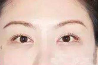 割双眼皮可以修复吗