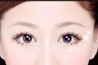 割双眼皮的类型有哪些