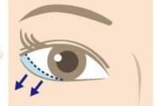 眼皮下垂手术多少钱