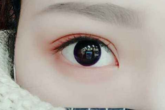 割双眼皮修复较佳时间