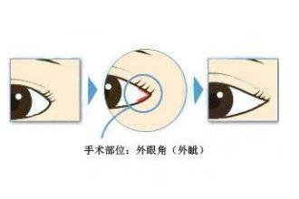 开眼角有后遗症吗