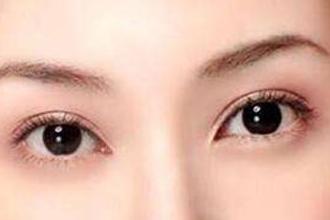 什么双眼皮类型好看