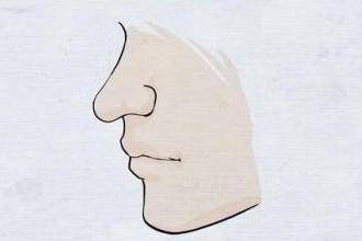 做个鼻子大概多少钱