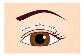 埋线双眼皮修复需要拆线吗