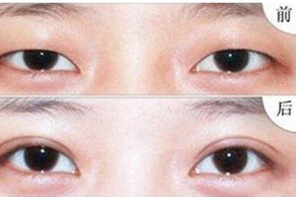 多次双眼皮手术会导致眼皮松弛吗