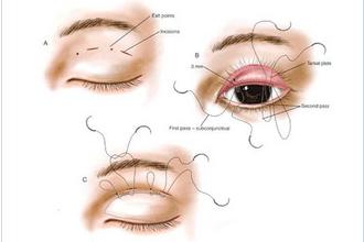 双眼皮术后恢复过程