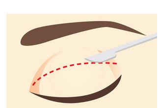 月经期可以做双眼皮吗