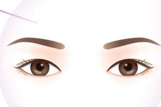 双眼皮修复多久可以做
