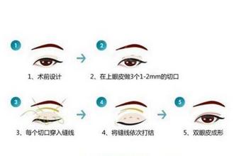 三点定位双眼皮的弊端