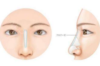 假体鼻子疼吗