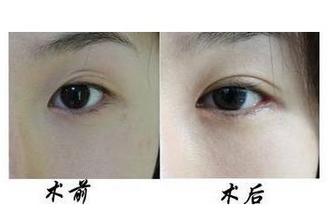双眼皮疤痕怎么消除