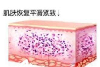 激光祛斑有副作用吗