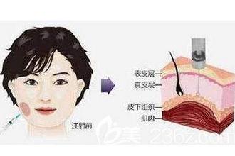 上海瘦脸针效果好不好