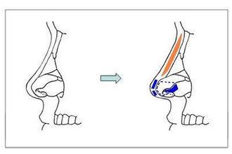 做完肋骨鼻综合几天可以走动