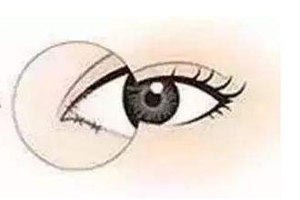 开眼角与不开的区别