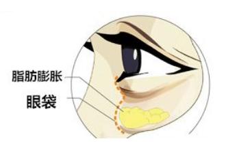 祛遗传性眼袋怎么办