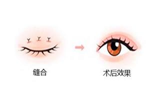 双眼皮手术可以全麻吗