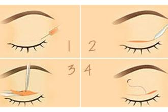 双眼皮修复需要注意的术后护理有哪些