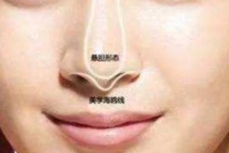 塌鼻子怎么变挺
