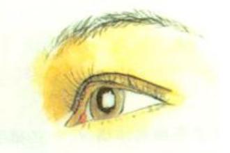 肿眼泡适合什么双眼皮