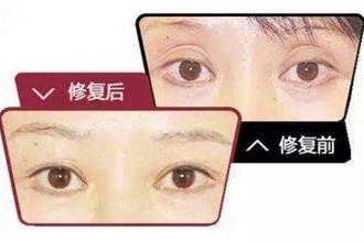 双眼皮修复后多久消肿