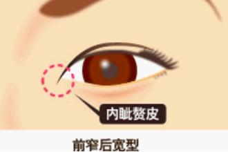开眼角拆线吗