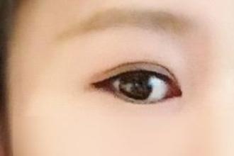 双眼皮修复是重新割吗