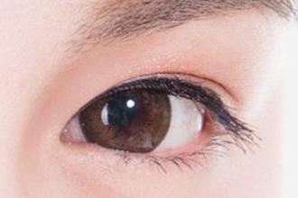 眼皮下垂还可以割双眼皮吗