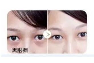 上海有什么医院看黑眼圈好点
