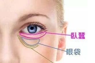 去眼袋术后要如何护理