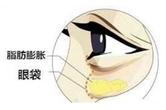 吸脂眼袋有副作用吗