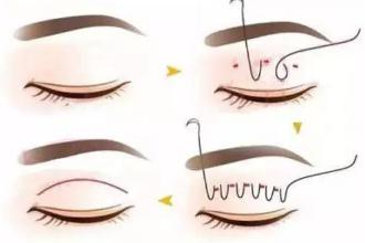 埋线双眼皮可以做第二次吗