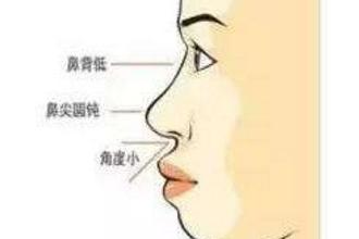 自体软骨隆鼻有危害吗