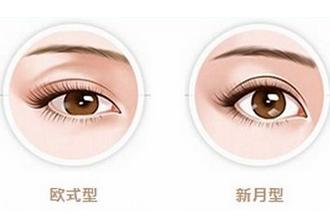 双眼皮哪做得好
