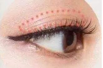 双眼皮下垂怎么办