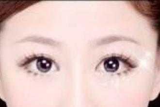 双眼皮眼综合多少钱