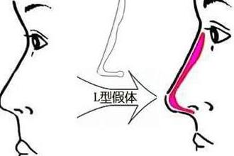 隆鼻有危险吗