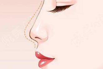 线雕隆鼻有什么后遗症
