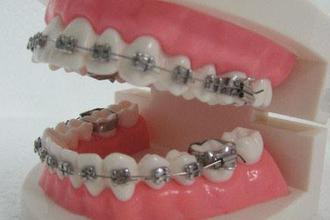 牙齿矫正有效果吗