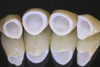 牙冠修复多少钱