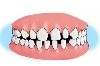 牙齿有缝隙怎么办