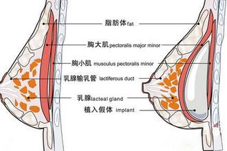 上海假体隆胸整形手术费用多少钱