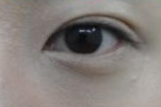 双眼皮手术不消肿怎么回事