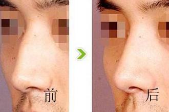 假体鼻子取出后果严重吗