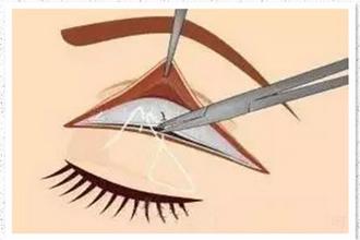 全切双眼皮修复的条件